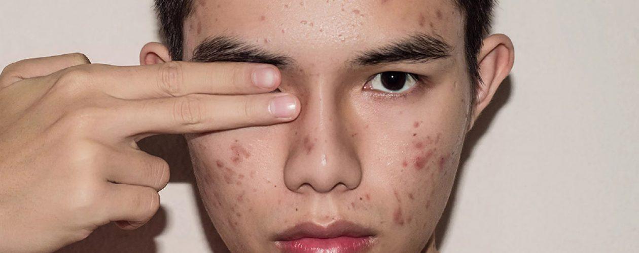 Como sua saúde intestinal afeta sua pele?